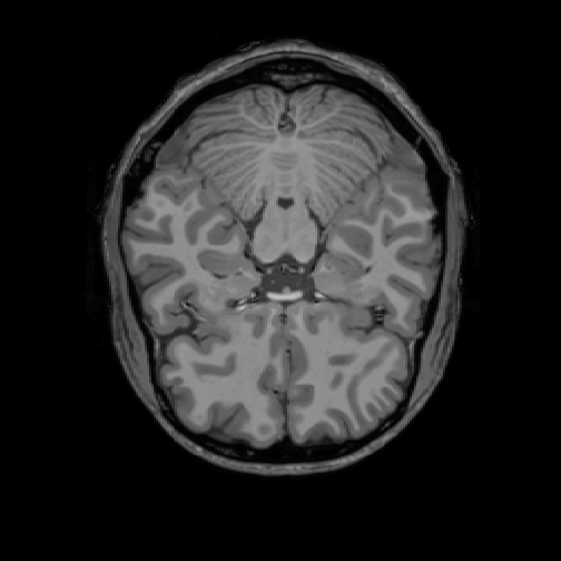 Visualization of MRI data in R